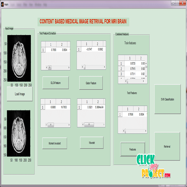 Automatic Retrival Of Mri Brain Image Using Multiqueries System| 2014 Projects