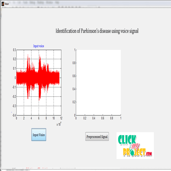 Identification of Parkinson's disease using voice signal| 2014 Projects