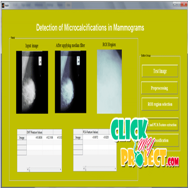 Detection of Microcalcifications in Mammograms Using Support Vector Machine| 2014 Projects
