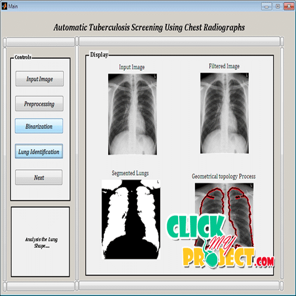 Automatic Tuberculosis Screening Using Chest Radiographs