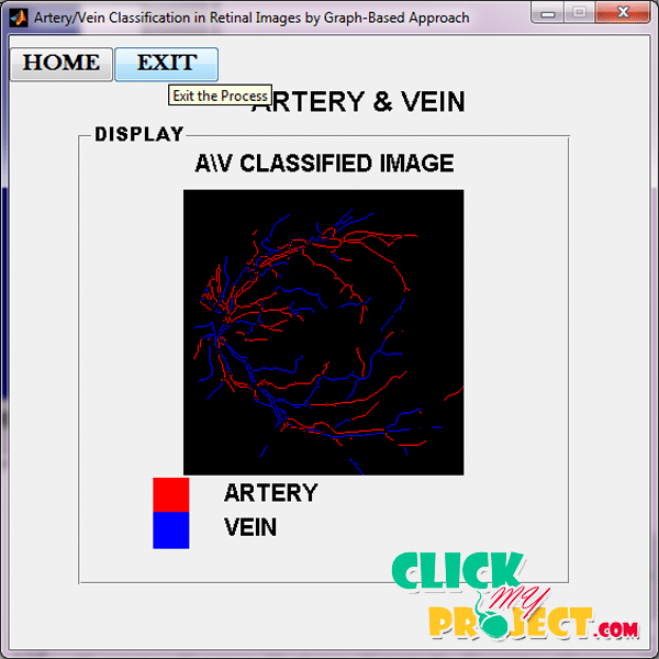 An Automatic Graph-Based Approach for Artery/Vein Classification in Retinal Images