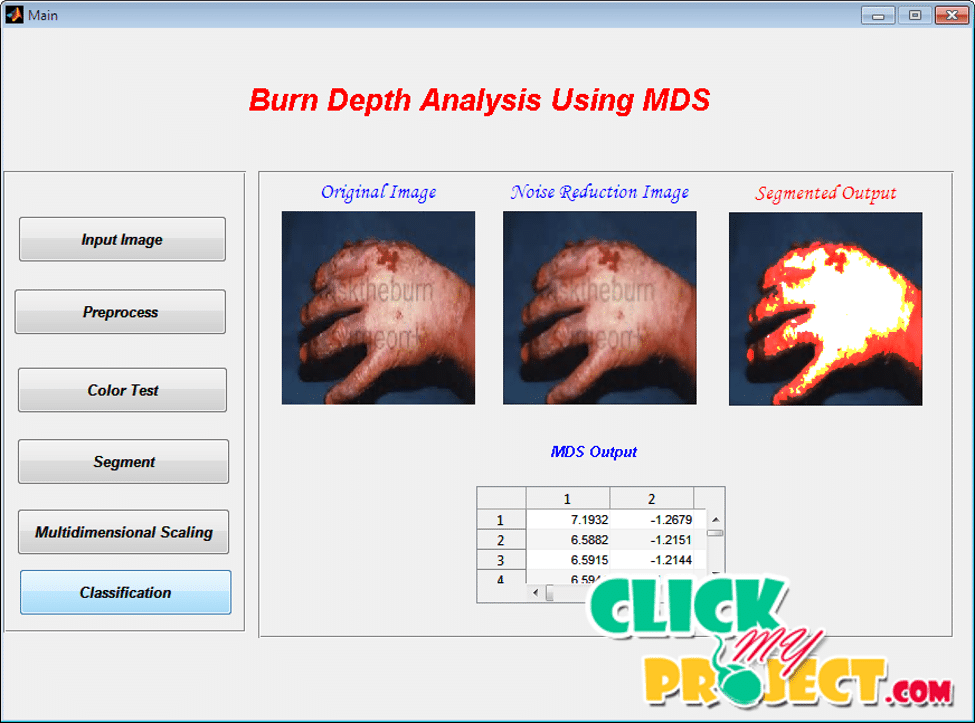 Burn Depth Analysis Using Multidimensional Scaling Applied to Psychophysical Experiment Data | 2015 Projects