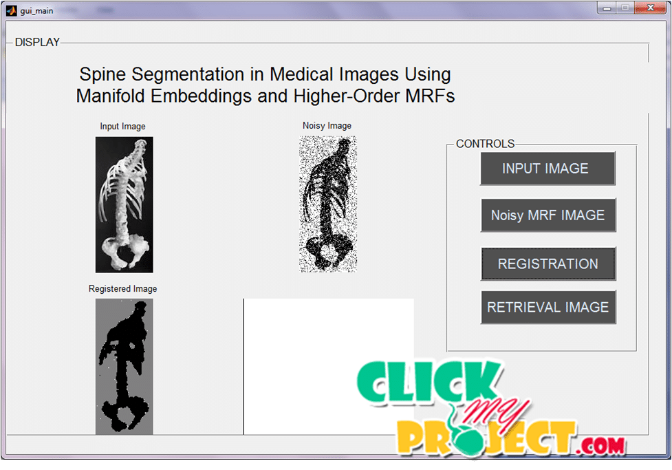 Spine Segmentation in Medical Images UsingManifold Embeddings | 2015 Projects