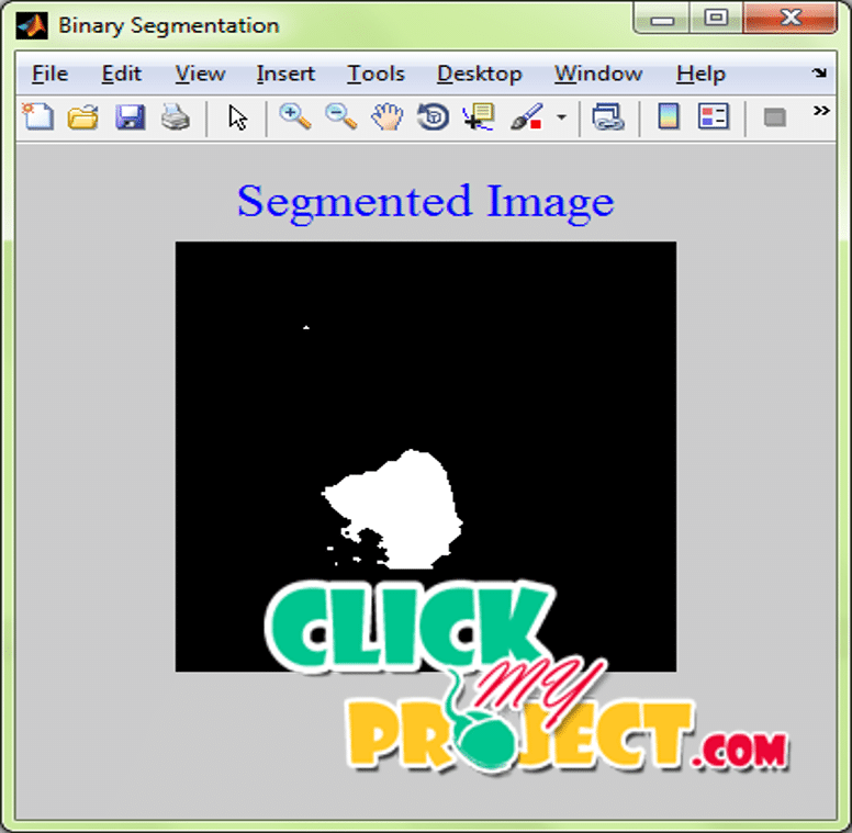 An Automatic Mass Detection System in Mammograms Based on Complex Texture Features | 2015 Projects