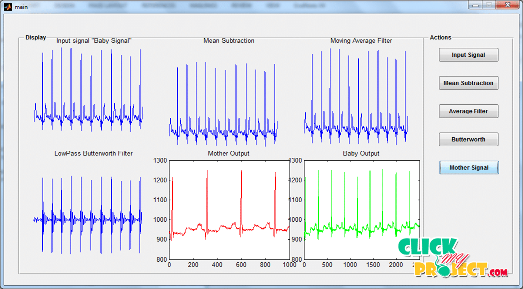 A New Method for Foetal Electrocardiogram Extraction Using Adaptive Nero-Fuzzy | 2015 Projects