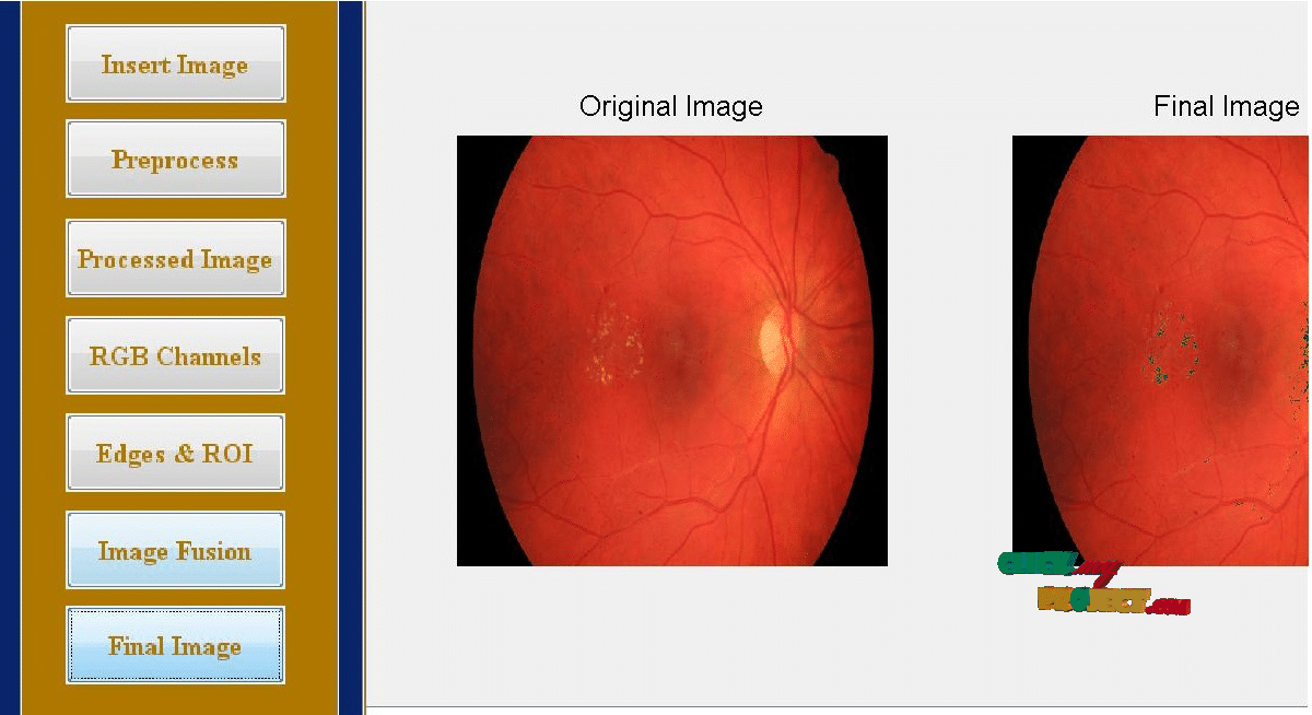 An Expert System to Distinguish a Defective eye from a Normal eye | 2015 Projects