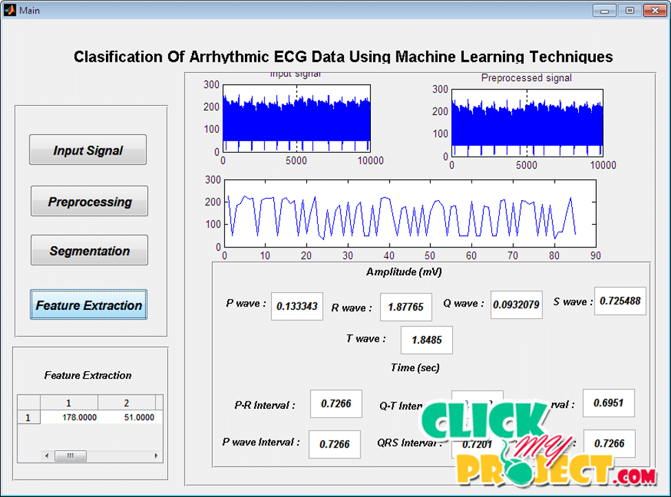Clasification Of Arrhythmic ECG Data Using Machine Learning Techniques | 2015 Projects