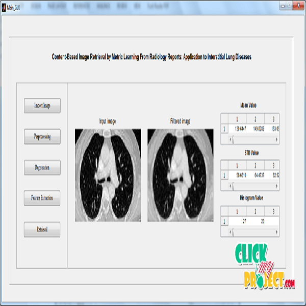 Content Based Image Retrieval by Metric Learning from Radiology Reports: Application to Interstitial Lung Diseases